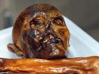 Otzi, omul cu varsta de 5.300 de ani gasit in Alpi a fost dus la dentist