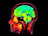 Cauti ceva? Creierul are capabilitatea de a-si  mobiliza  mai multe parti ca sa te ajute