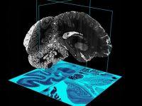 Oamenii de stiinta au creat prima  harta  3D a creierului uman