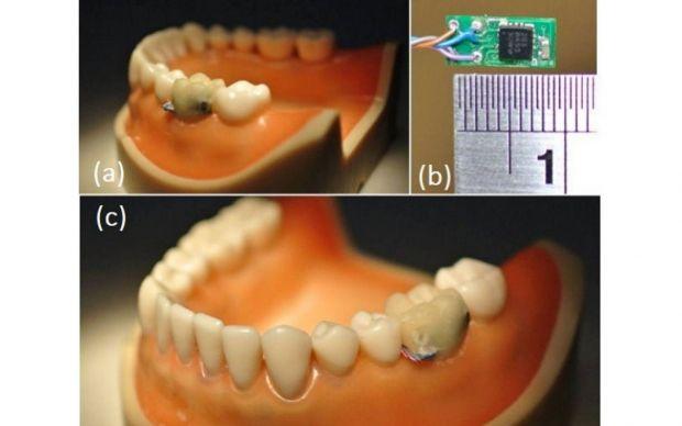 Un senzor plantat intr-un dinte  inteligent  il poate avertiza pe posesor cand acesta face excese