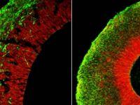 Oamenii de stiinta au crescut un mic creier in laborator