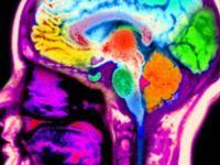 Studiu: Persoanele care au insomnii isi pierd concentrarea mult mai repede
