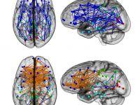 Femeile si barbatii au creiere diferite. Cine se pricepe mai bine la multitaking