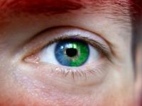 S-a trezit intr-o dimineata cu un ochi verde! Cazul care a uimit o lume intreaga