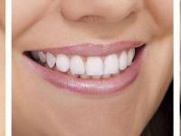 (P) Cât trebuie să scoți din buzunar pentru un implant dentar și cât de mult își merită banii?