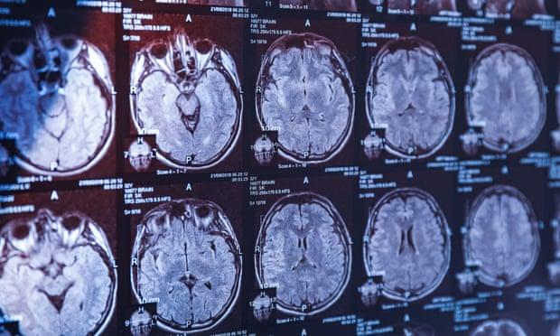 De ce este creierul uman atât de mare. Cercetătorii au găsit răspunsul