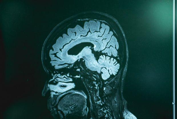 Legătura neștiută dintre calitatea aerului respirat și riscul de a dezvolta demență. Un nou studiu lansează o ipoteză îngrijorătoare